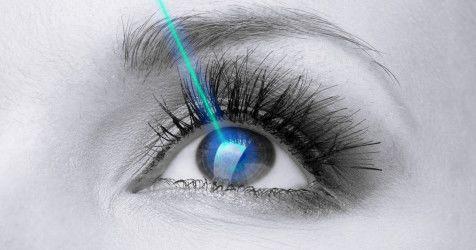 Cirugia laser astigmatismo