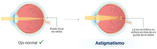 prueba de astigmatismo