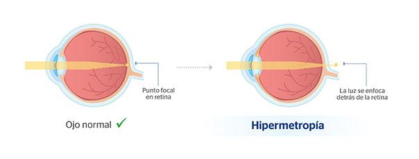prueba hipermetropia
