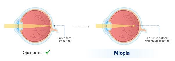 prueba de miopia